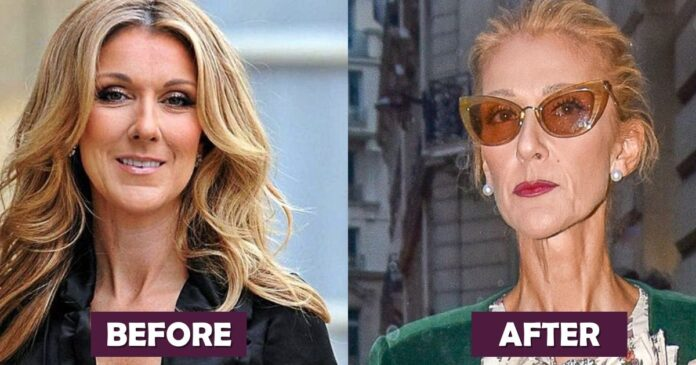 Celine Dion Before And After Weight Loss Photos
